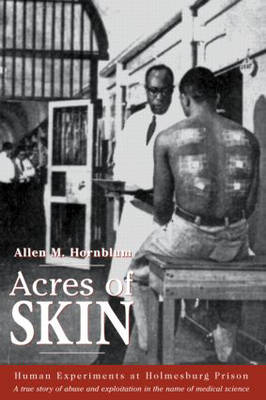 Acres of Skin: Human Experiments at Holmesburg Prison (Paperback)