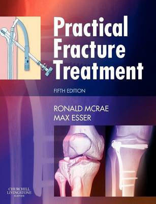 Practical Fracture Treatment (Paperback)
