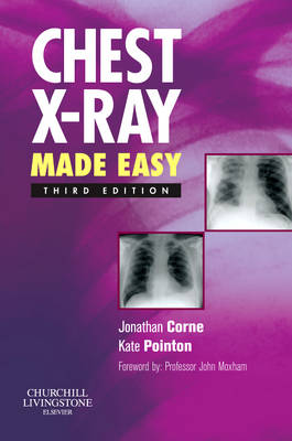Chest X-Ray Made Easy - Made Easy (Paperback)