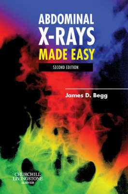 Abdominal X-rays Made Easy - Made Easy (Paperback)