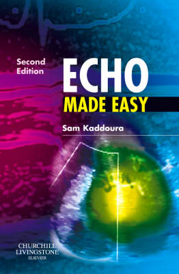 Echo Made Easy - Made Easy (Paperback)