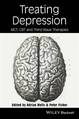 Treating Depression: MCT, CBT and Third Wave Therapies (Paperback)