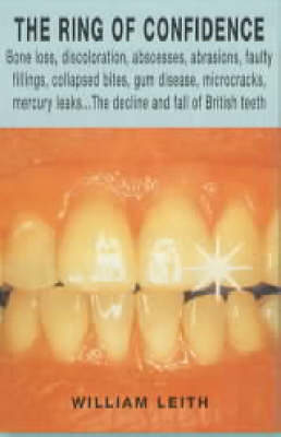 British Teeth: An Excruciating Journey from the Dentist's Chair to the Rotten Heart of a Nation - Front Lines (Paperback)