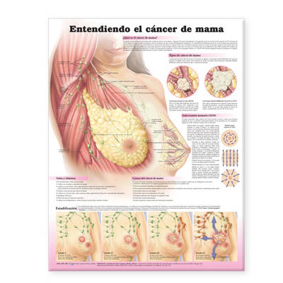 Understanding Breast Cancer Spanish: Entendiendo El Cancer De Mama (Fold-out book or chart)