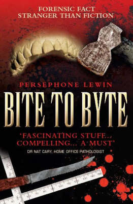 Bite to Byte: The Story of Injury Analysis (Paperback)