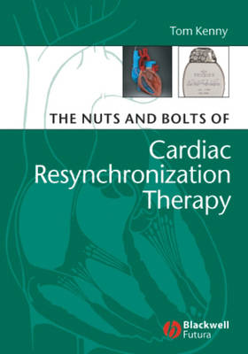 The Nuts and Bolts of Cardiac Resynchronization Therapy - Nuts & Bolts (Paperback)