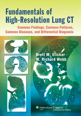 Fundamentals of High-Resolution Lung CT: Common Findings, Common Patterns, Common Diseases, and Differential Diagnosis (Paperback)