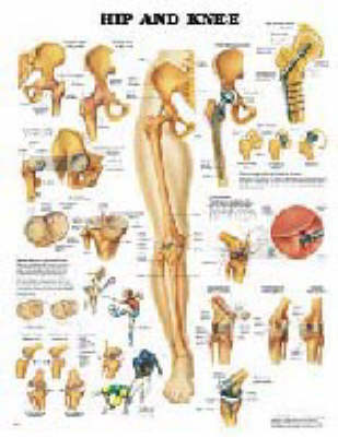 Hip and Knee (Wallchart)