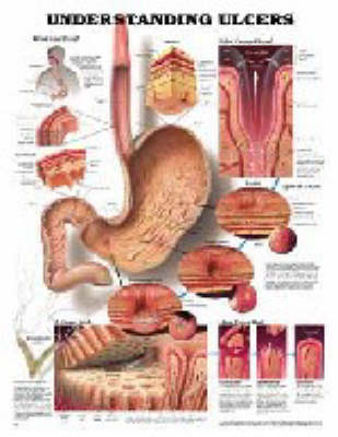 Understanding Ulcers - Teach & learn No 29 (Wallchart)