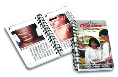 Child Abuse Quick Reference: for Healthcare, Social Service, and Law Enforcement Professionals (Spiral bound)