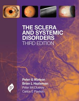 The Sclera and Systemic Disorders (Hardback)