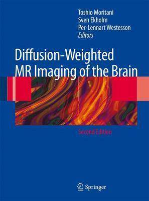 Diffusion-weighted MR Imaging of the Brain (Hardback)