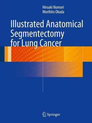 Illustrated Anatomical Segmentectomy for Lung Cancer (Hardback)