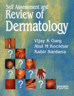 Self Assessment and Review of Dermatology: Volume 1 (Paperback)